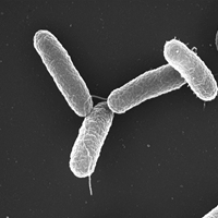 Salmonella_typhimurium.png / Volker Brinkmann, Max Planck Institute for Infection Biology, Berlin, Germany, Copyright: CC BY 2.5, Erstellt: April 5, 2005